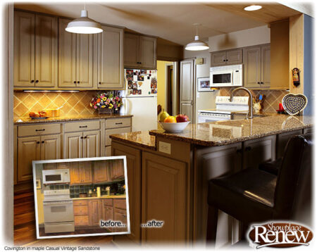 How Is Refacing Done?